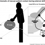 Schematic of rescuer patient contact during external defibrillation